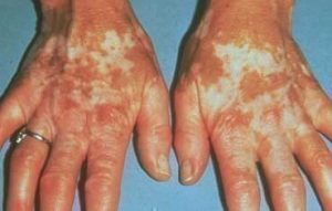 Vitiligo_symptoms_hands